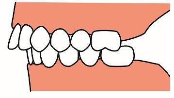 出っ歯(上顎前突)について