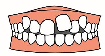 八重歯、叢生について