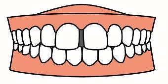 空隙歯列について