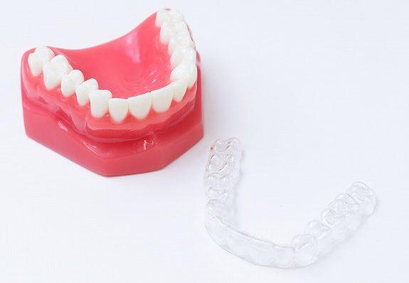 金属のワイヤーを使用せず、歯並びをキレイに整えるマウスピース矯正