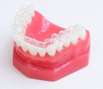 部分的な矯正治療「部分矯正」で歯並びが整う可能性も