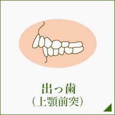 出っ歯 (上顎前突)