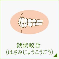 鋏状咬合 (はさみじょうこうごう)