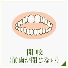 開咬 (前歯が閉じない)