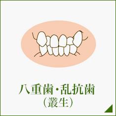 八重歯・乱抗歯 (叢生)