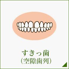 すきっ歯 (空隙歯列)